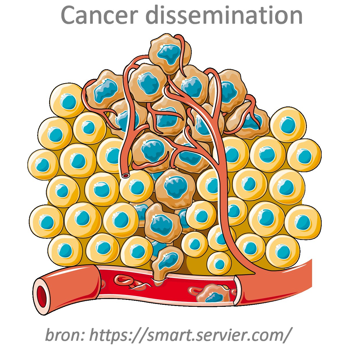 Cancer_dissemination